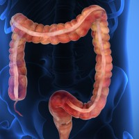 parasiten im darm